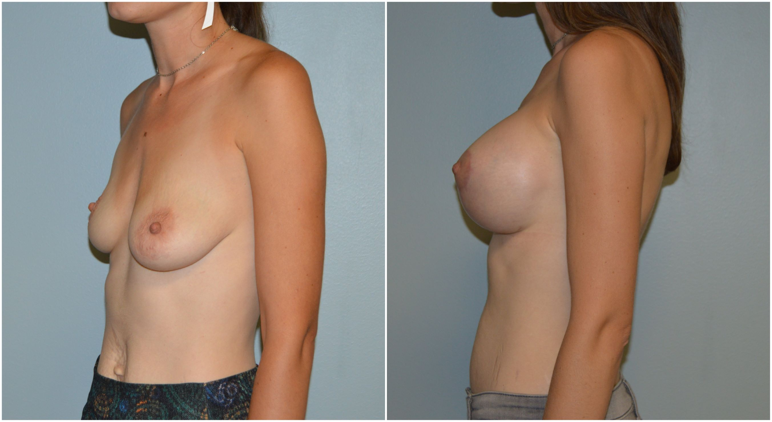 Boob Job Before and After 1