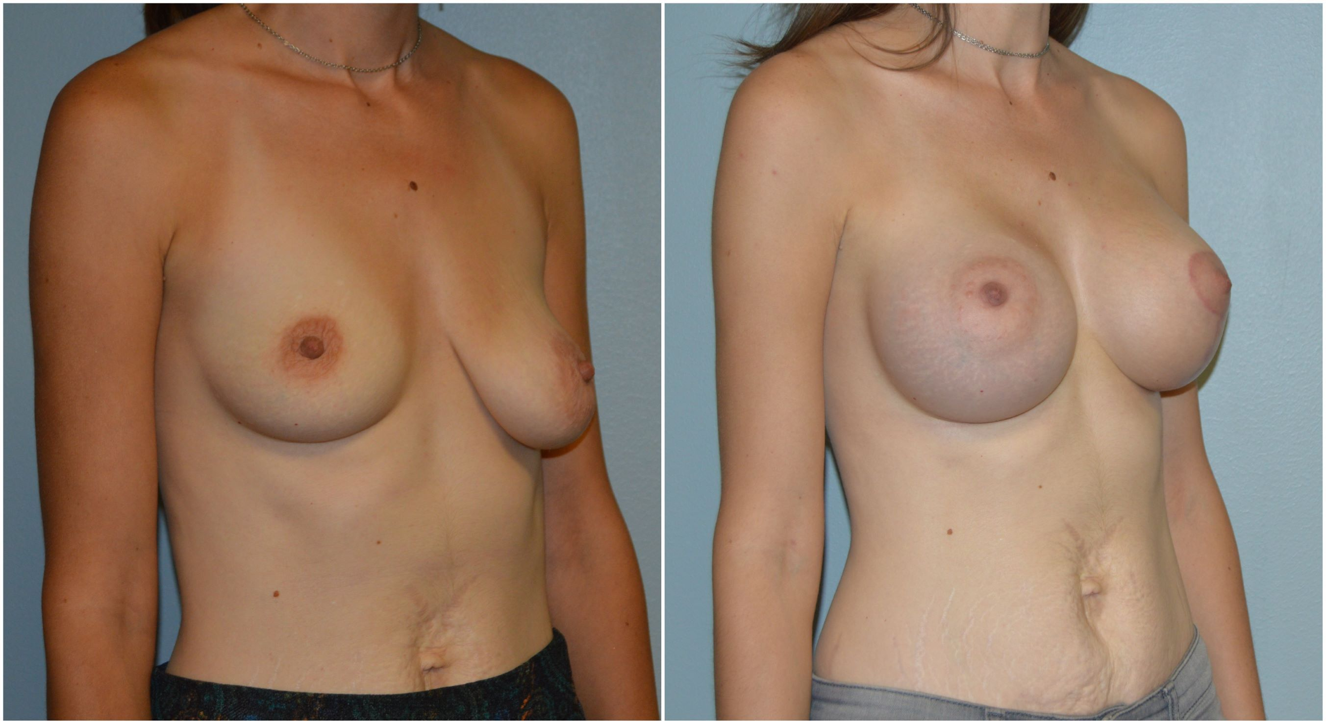 Augmentation Mammoplasty Before & After 1
