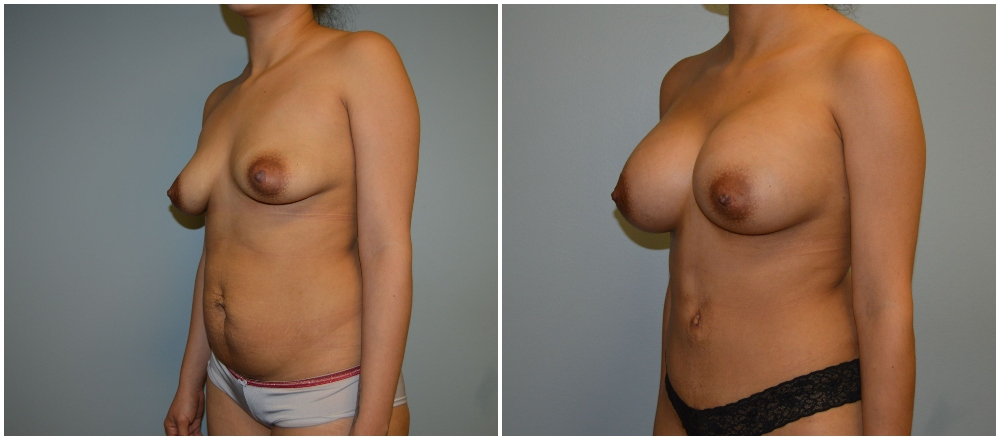 Before and After Abdnominoplasty Surgery
