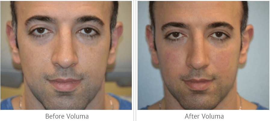 Voluma plastic surgery at Precision Plastic Surgery