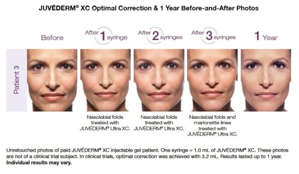 Juvederm Before and After Pictures